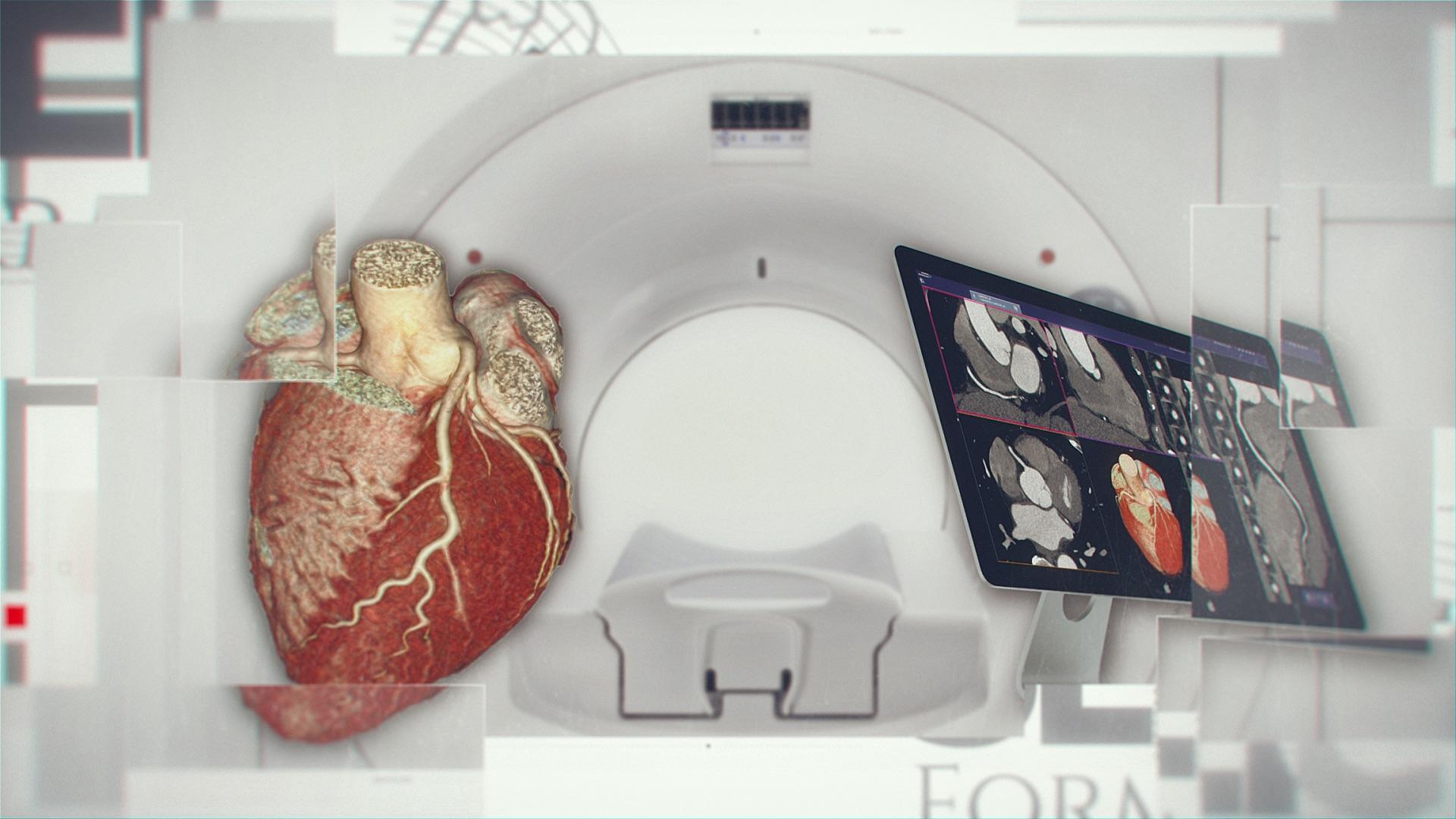 Curso Intensivo + Aprenda a Leer Casos de Cardio TC con Bastarrika