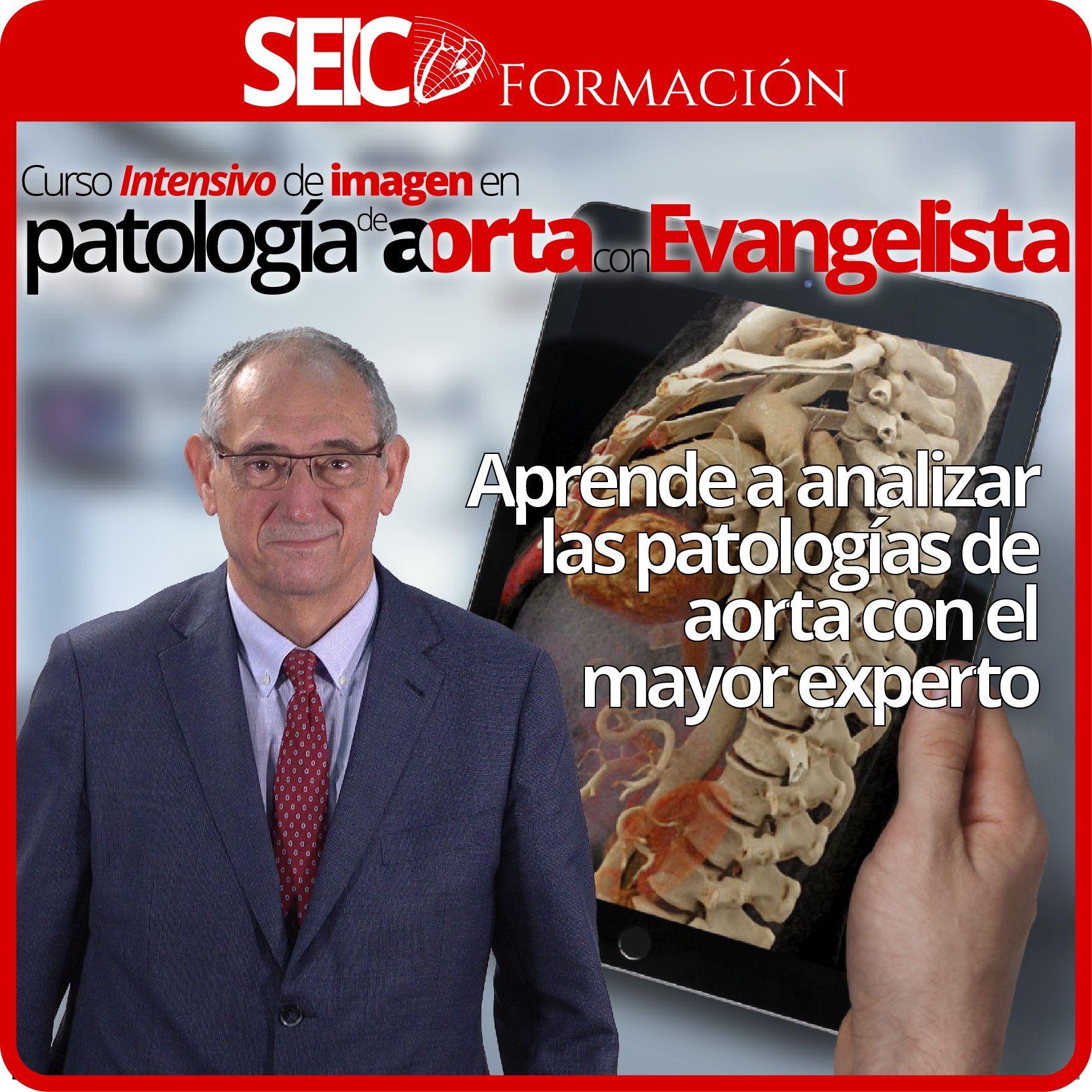 Curso Intensivo de Imagen en Patología de Aorta con Evangelista