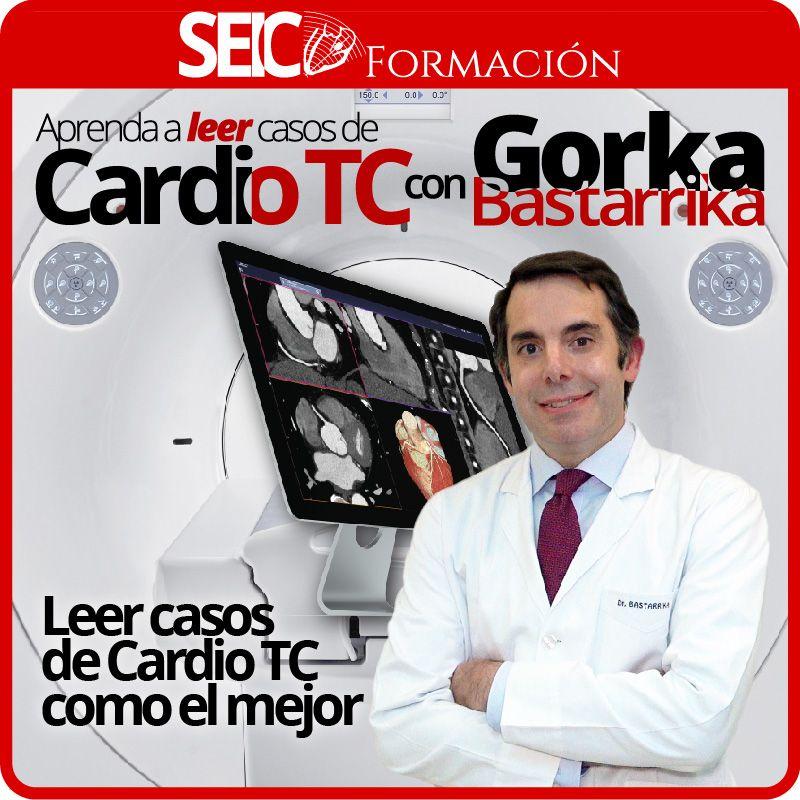 Aprenda a Leer Casos de Cardio TC con Gorka Bastarrika