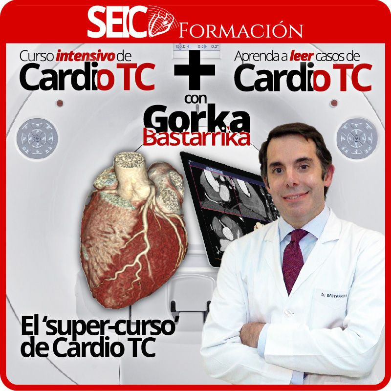 Curso Intensivo + Aprenda a Leer Casos de Cardio TC con Gorka Bastarrika